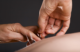 acupuncture richmond hill